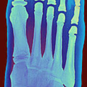 Child's Foot, X-ray Art Print