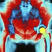 Coloured X-ray Of An Artificial Hip Joint Art Print