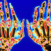 Coloured X-ray Of Hand In Gouty Arthritis Art Print