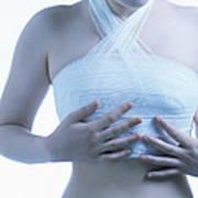 Cosmetic Breast Surgery Art Print