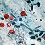 Cryptosporidium Oocysts Lm Art Print by Science Source
