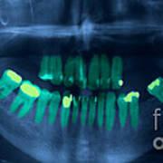 Dental X-ray Art Print