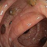 Diverticular Disease In Sigmoid Colon Art Print