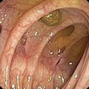 Diverticular Disease Of The Colon Print by Gastrolab