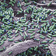 Dividing Yeast Cells, Sem Print by Steve Gschmeissner