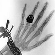 Early X-ray Photograph Of A Hand Taken In 1896 Art Print