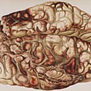 Encircling Gunshot-wound In Brain, 1898 Art Print