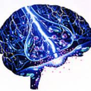 Epilepsy Art Print