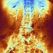False-col X-ray Of Lumbar Spine Of Woman Art Print