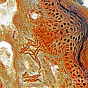Free Nerve-endings, Epidermis Art Print