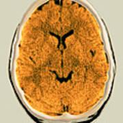Healthy Brain, Ct Scan Art Print