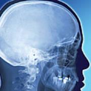 Healthy Skull, Coloured X-ray Art Print