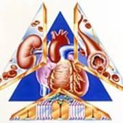 High Blood Pressure, Artwork Art Print
