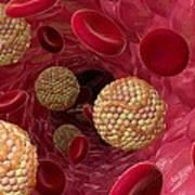 High Cholesterol Levels, Artwork Art Print