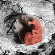 Human Embryo Art Print