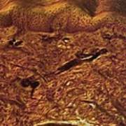 Human Skin, Light Micrograph Art Print by Robert Markus