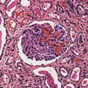 Inflamed Kidney, Light Micrograph Art Print