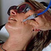 Laser Skin Treatment Art Print