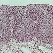 Lm Of Grade IIi Cervical Intraepithelial Neoplasia Art Print