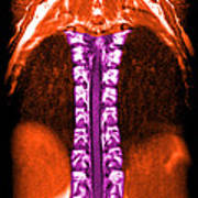 Mri Of Normal Thoracic Spinal Cord Art Print