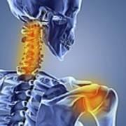 Neck And Shoulder Pain,computer Artwork Art Print