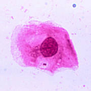 Neisseria Meningitidis Art Print