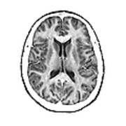 Normal Cross Sectional Mri Of The Brain Art Print