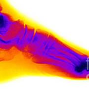 Normal Human Foot Art Print