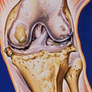 Osteoarthritic Knee Art Print
