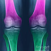 Osteoarthritis Of The Knees Art Print