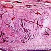 Ovary Tissue, Light Micrograph Art Print by Dr Keith Wheeler