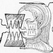 Par� Suture, 1500s Art Print