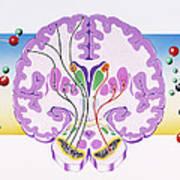 Parkinson's Disease Art Print
