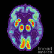Pet Scan Of Alzheimers Disease Brain, 2 Art Print