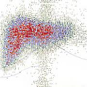 Radionuclide Scanning Of A Normal Liver Art Print