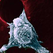 Sem Of Metastasis Print by Science Source