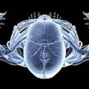 Skeleton From Above, X-ray Artwork Art Print