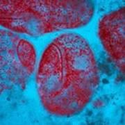 Stentor Ciliate Protozoa Light Micrograph Print by Frank Fox
