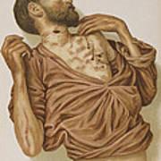 Suicide Through Stabbing 1898 Art Print