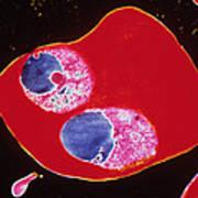 Tem Of 2 Merozites Of The Malaria Parasite Art Print