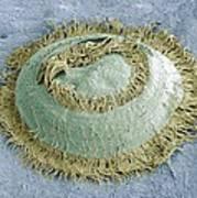 Trichodina Parasite, Sem Art Print by Steve Gschmeissner