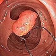 Tubular Polyp In The Colon Print by Gastrolab