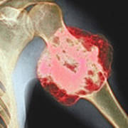 Upper Arm Tumour, X-ray Art Print