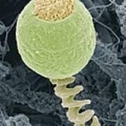Vorticella Protozoan, Sem Art Print