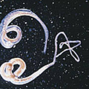 Whipworm Parasites Art Print
