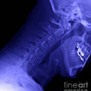 X-ray Of A Cervical Spine Art Print