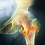 Coloured X-ray Of Femur Fracture In Osteoporosis Art Print