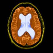 Mri Communicating Hydrocephalus Nph Print by Medical Body Scans