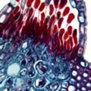 Rust Fungus In A Leaf, Light Micrograph Art Print
