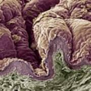 Skin Tissue, Sem Art Print by Steve Gschmeissner